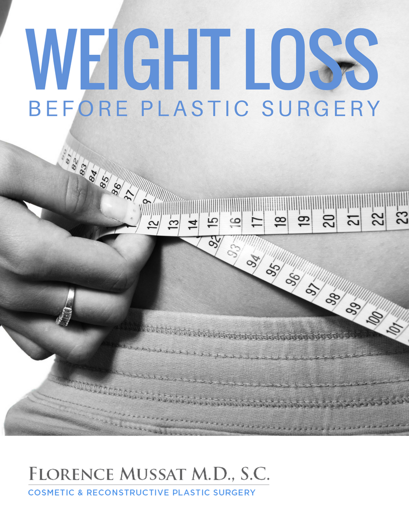 Weight Loss Before Plastic Surgery Featured Article