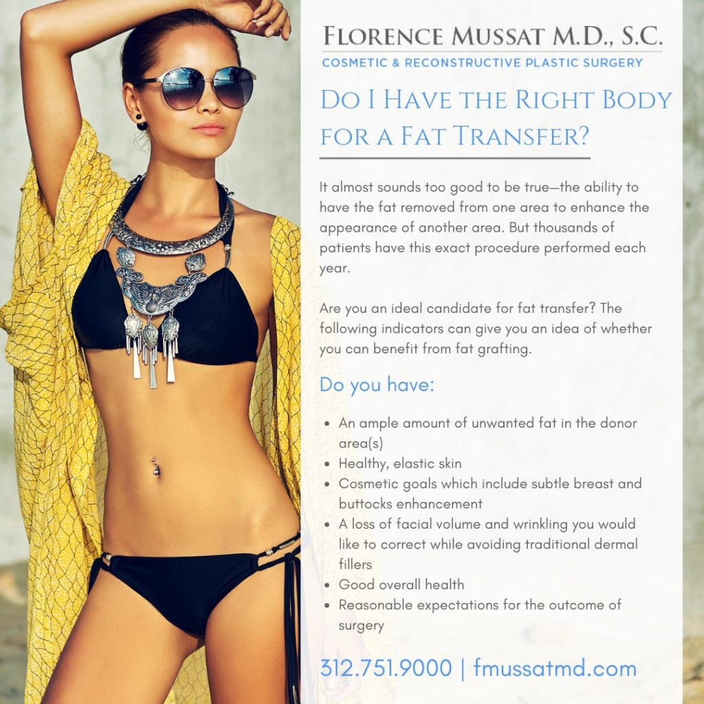 Fat Transfer in Chicago, IL | Fat Grafting | Dr  Florence Mussat